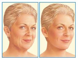Facelift diagram