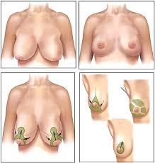Breast reduction techniques